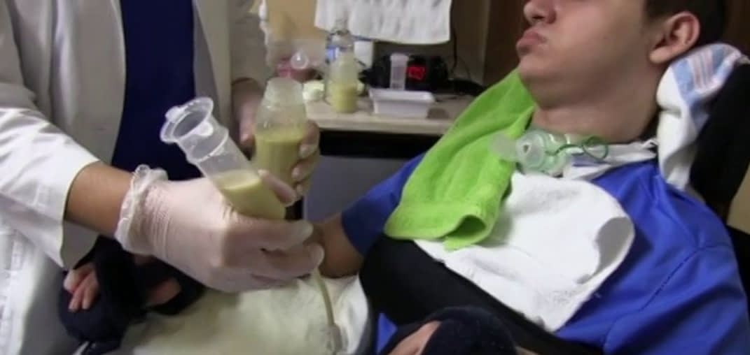 Day In The Life Video   7a41e feeding tube